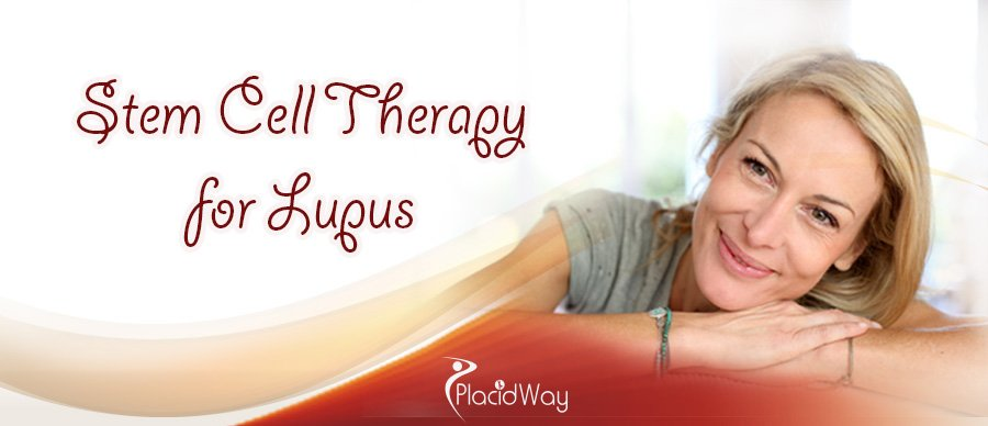 Stem Cell Therapy for Lupus Abroad
