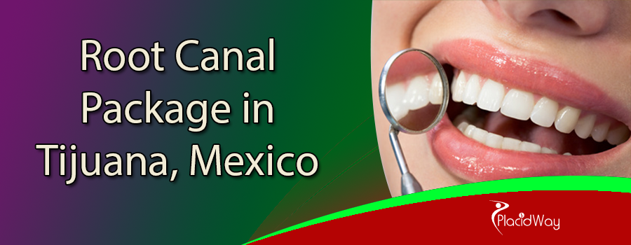 Affordable Root Canal Treatment Package in Tijuana, Mexico
