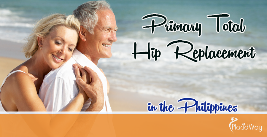 Hip Replacement Abroad