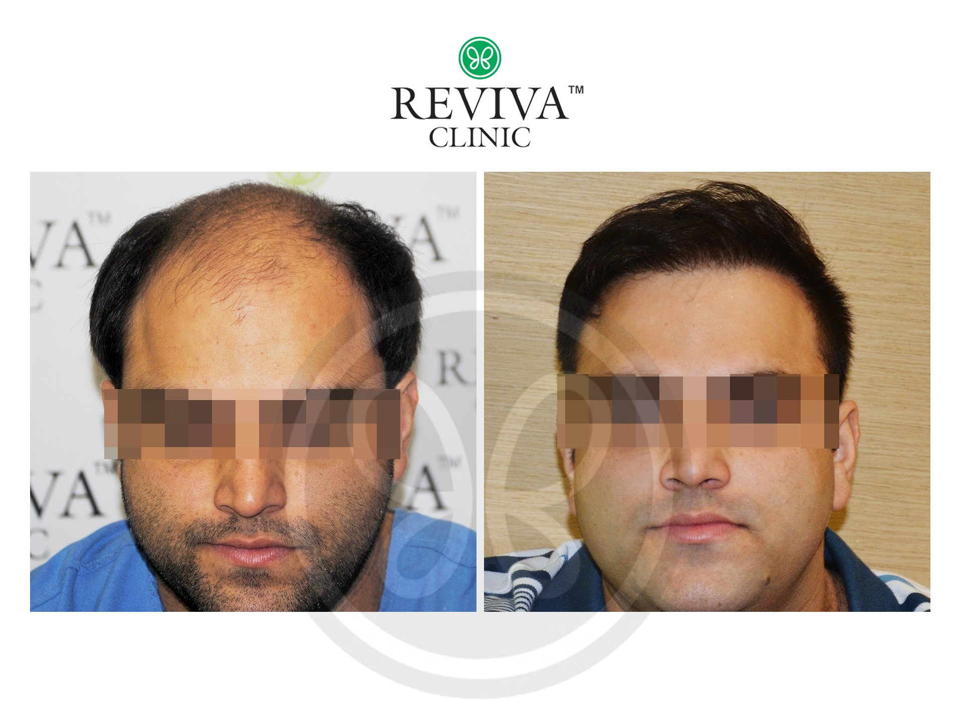 Reviva Before and After 1