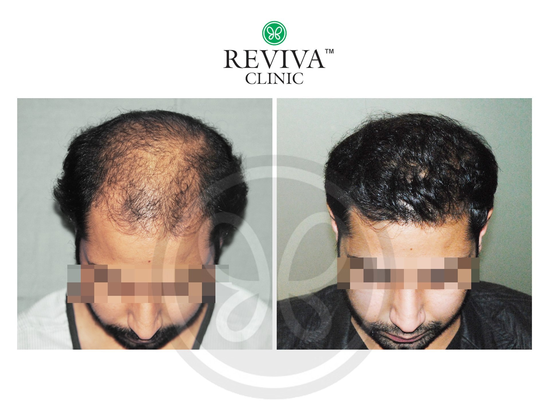 Reviva Before and After Hair Transplant 2