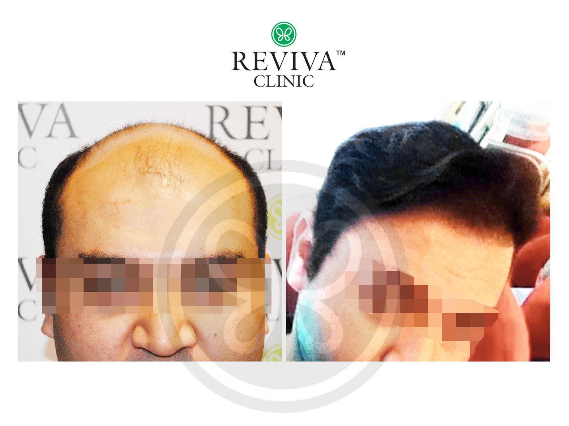 Reviva Before and After Hair Transplant 3