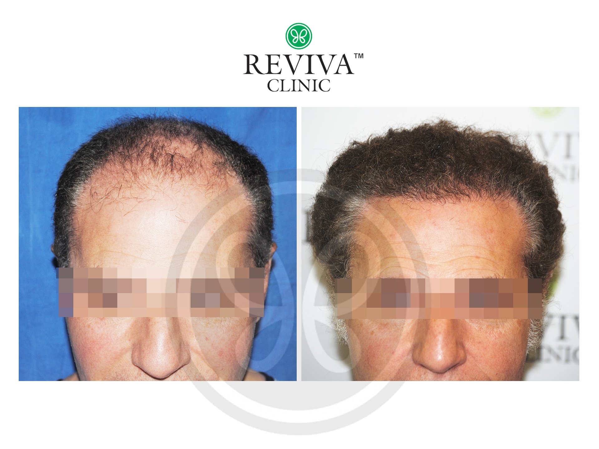 Reviva Before and After Hair Transplant 4