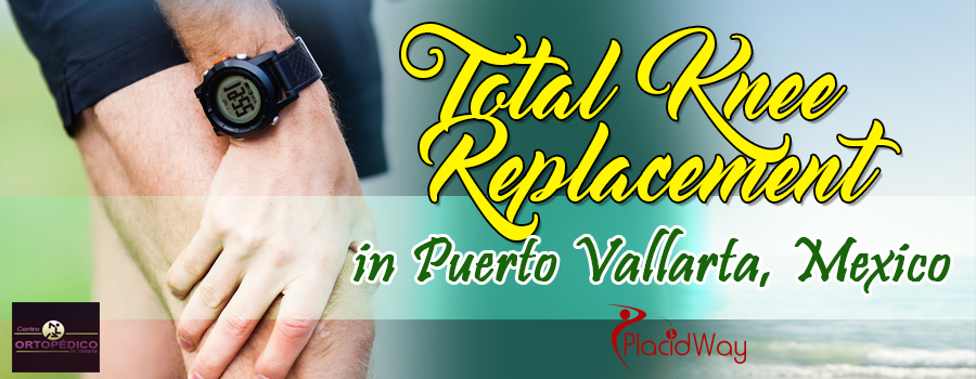 Knee Replacement in Mexico Puerto Vallarta dr max greig orthopedic surgeon