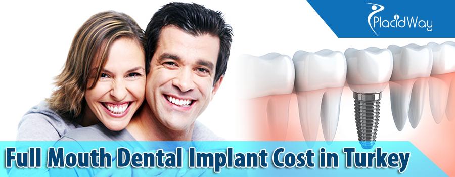 Full Dental Implants Procedure Cost in Turkey