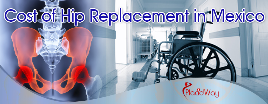 Everything You Should Know About Hip Replacement In Mexico