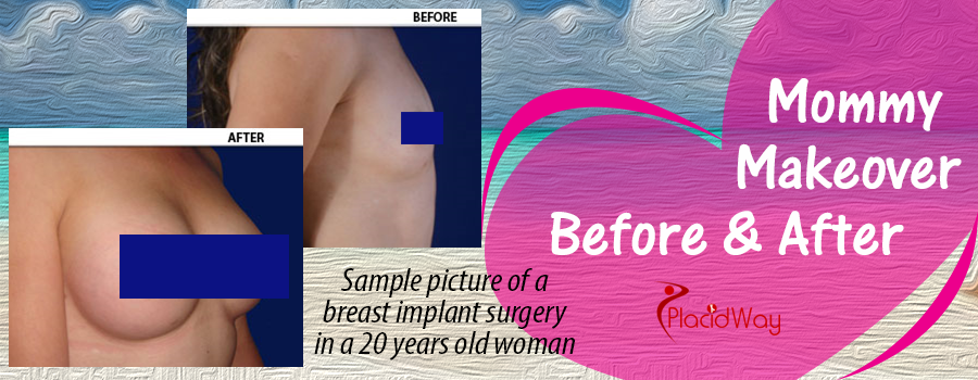 Before and After Breast Implants in Latin America