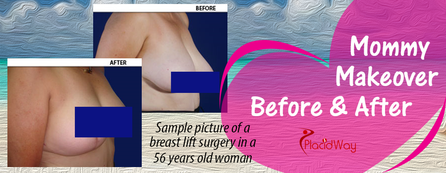 Before & After breast lift in Mexico