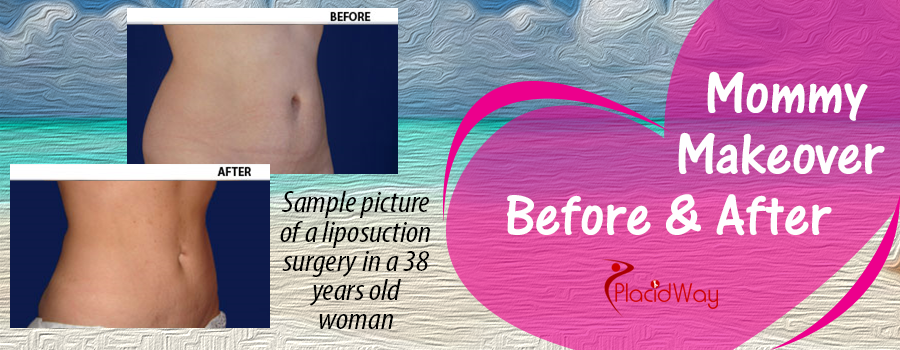 Before & After Liposuction in Mexico