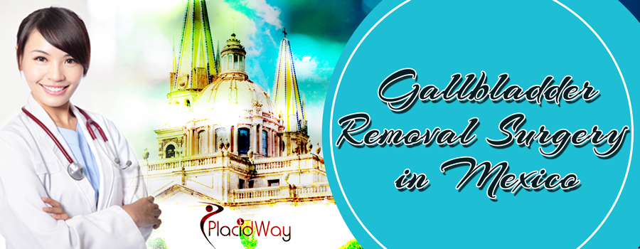 Gallbladder Removal Surgery in Mexico