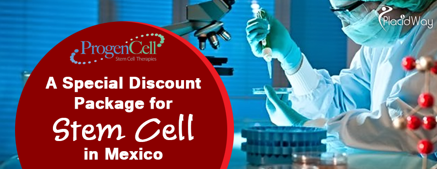 A Special Discount Package for Stem Cell in Mexico