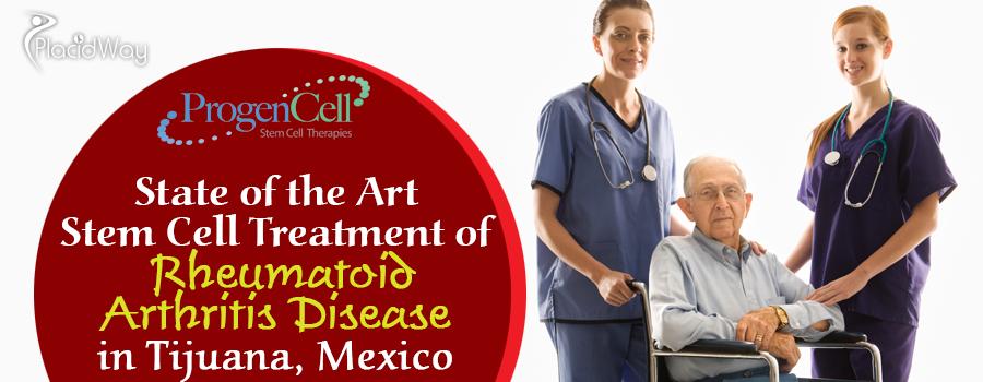 State of the Art Stem Cell Treatment of Rheumatoid Arthritis Disease in Tijuana Mexico