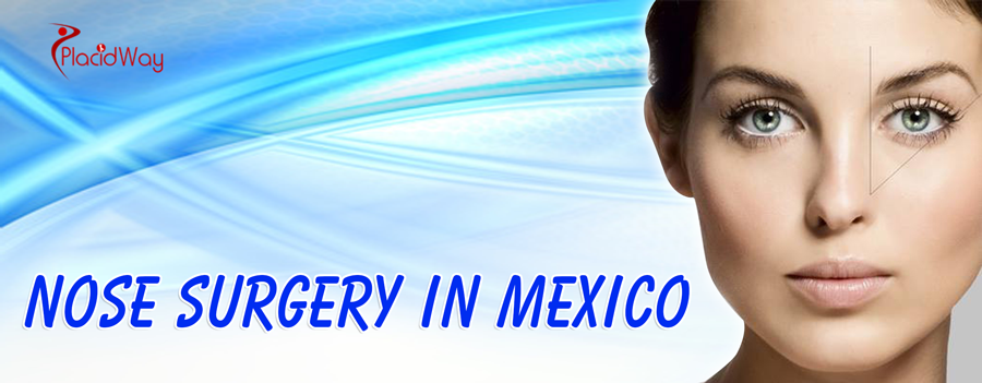 Rhinoplasty in Mexico