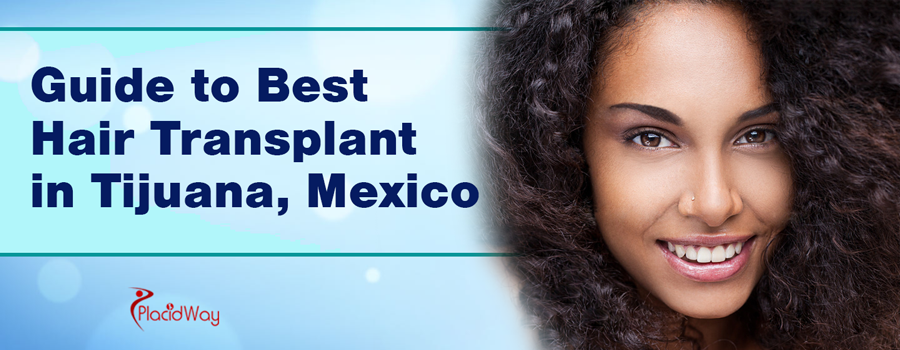 Guide to Best Hair Transplant in Tijuana, Mexico
