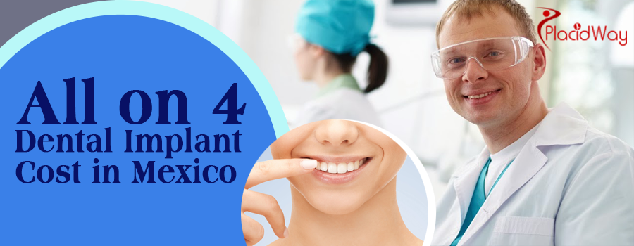 All On 4 Dental Implants Cost in Mexico- Highly Affordable