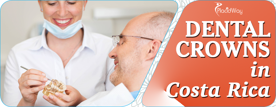 Important Facts About Dental Crowns in Costa Rica