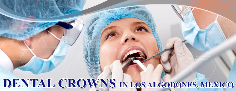 Dental Crowns in Los Algodones, Mexico