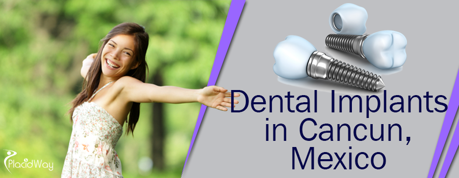 Dental Implants in Cancun, Mexico