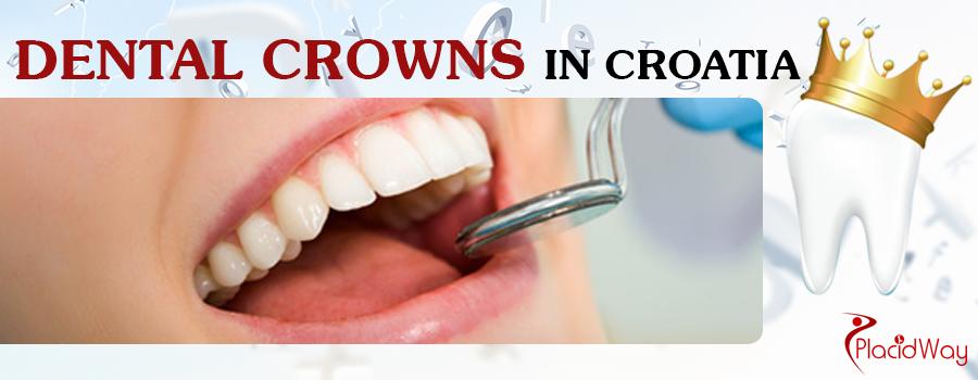 Dental Crowns in Croatia