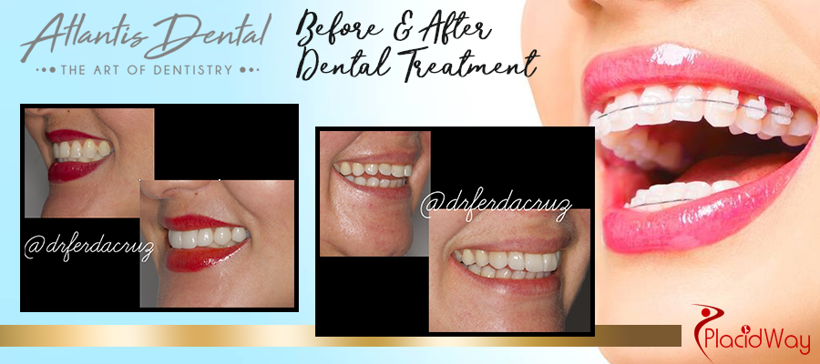 Treatments and procedures offered by Atlantis Dental, Esthetic and Implant Dentistry