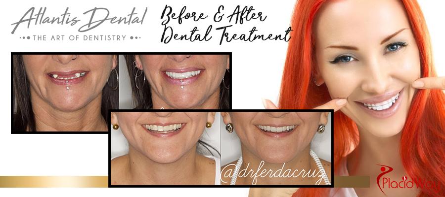 Before and After Dental Veneers in Costa Rica