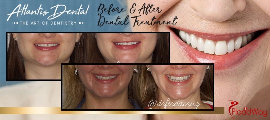 Patient Testimonial Picture of Dental Treatment Costa Rica