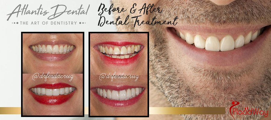 Before and After Image of Patient Atlantis Dental Costa Rica