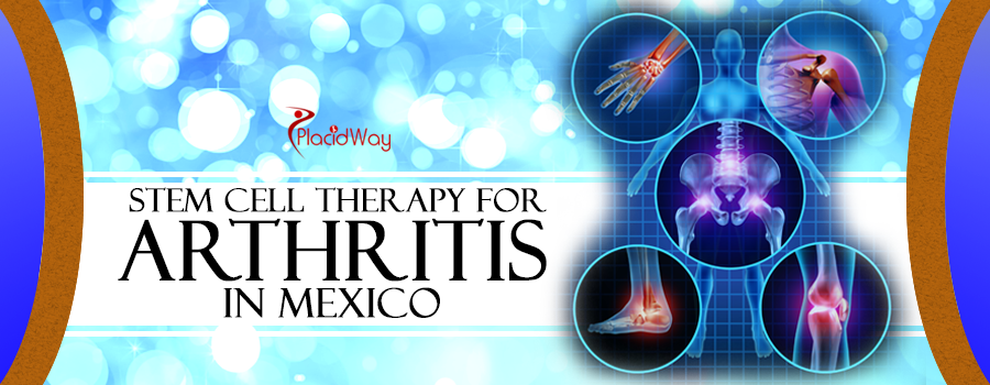 Stem Cell Therapy for Arthritis in Mexico