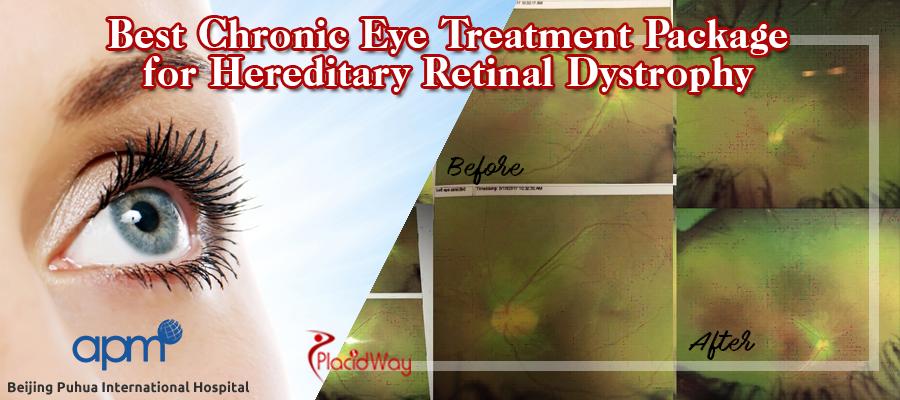 Chronic Eye Treatment Package for Hereditary Retinal Dystrophy
