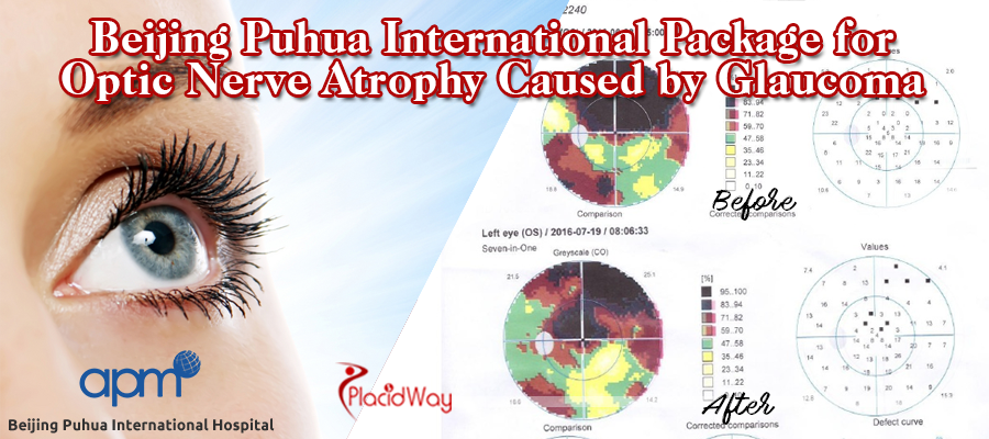 Beijing Puhua International Hospital Package for Optic Nerve Atrophy Caused by Glaucoma
