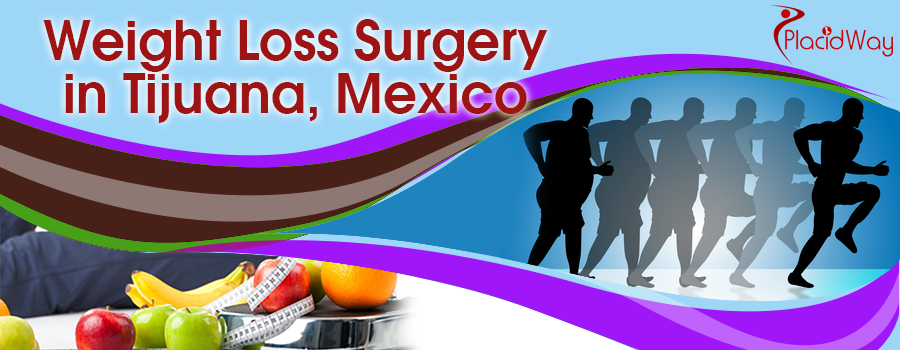 Know More About Weight Loss Surgery In Tijuana Mexico