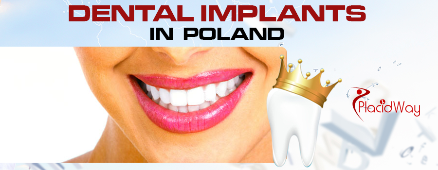 Dental Implants Procedures in Poland