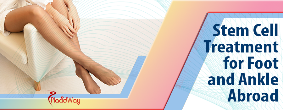 Stem Cell Treatment for Foot and Ankle Abroad