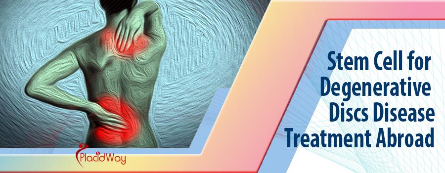 Stem Cell for Degenerative Discs Disease