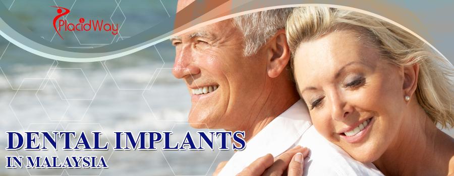 Dental Implants at Malaysia