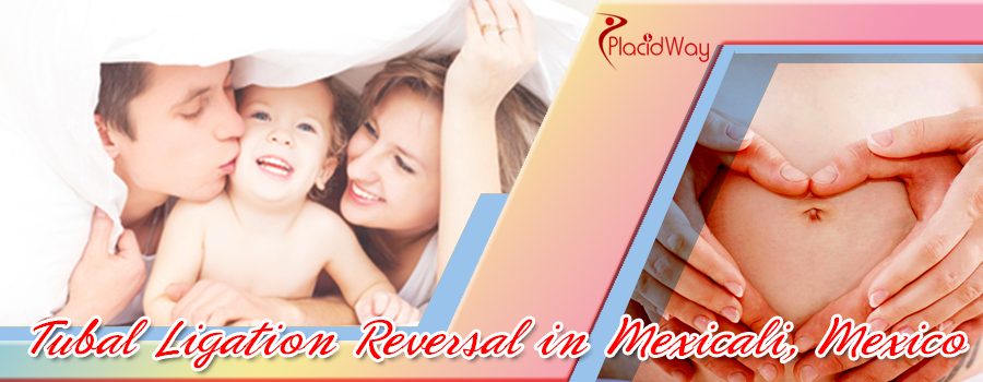 Tubal Ligation Reversal in Mexicali, Mexico