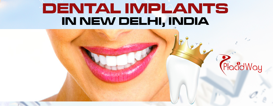 Dental implants in New delhi, India