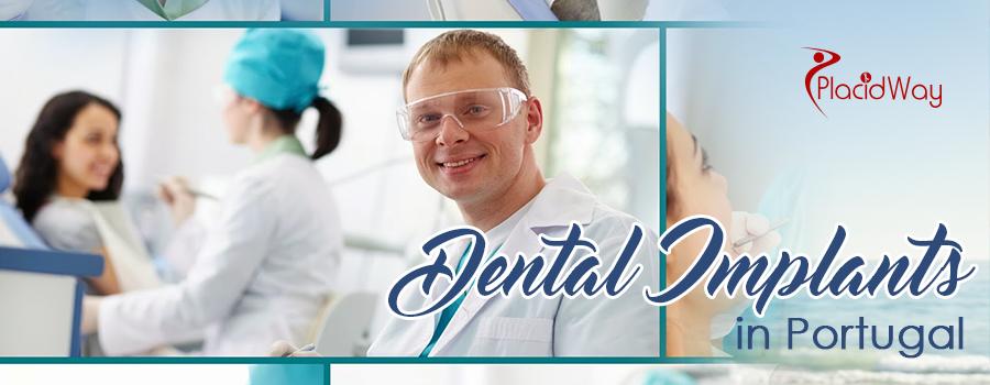 Dental Implants in Portugal