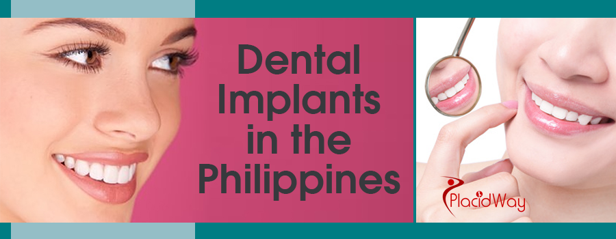 Dental Implants in Philippines