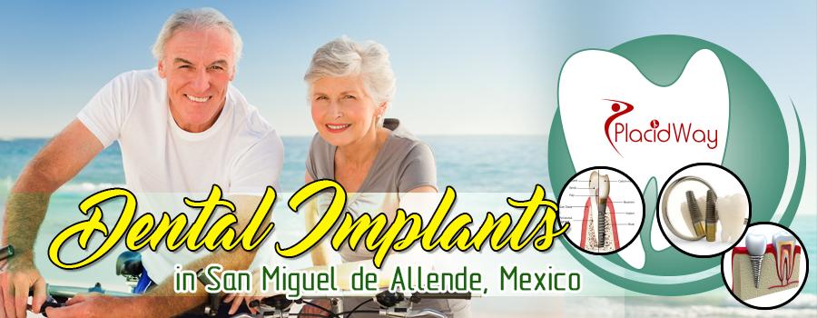 Dental Implants in San Miguel De Allende, Mexico