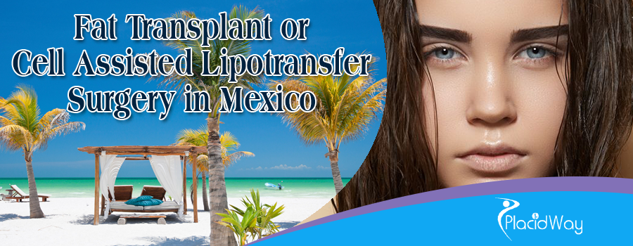 Fat Transplant or Cell Assisted Lipotransfer Surgery in Mexico