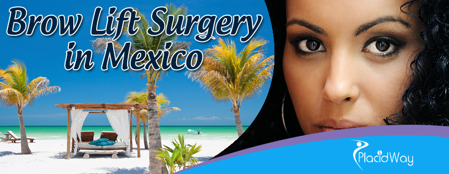 Brow Lift Surgery in Mexico