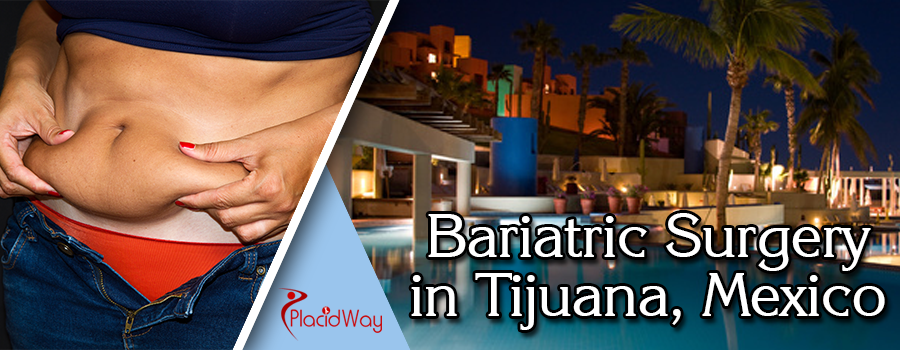 Bariatric Surgery in Tijuana, Mexico
