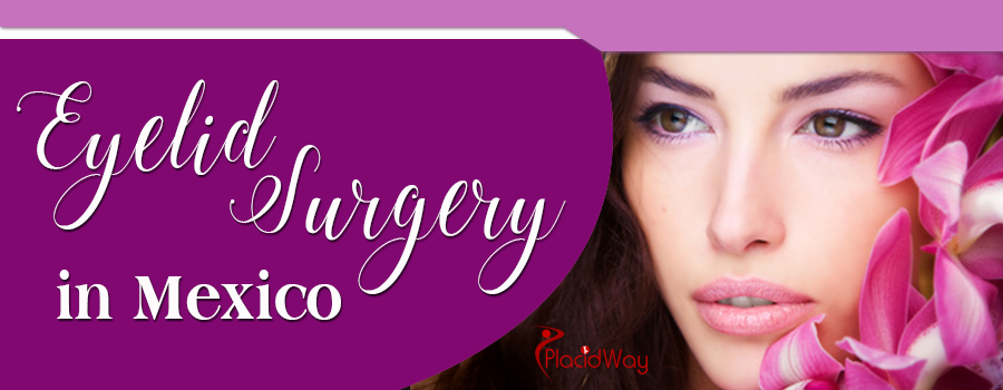 Eyelid Surgery in Mexico