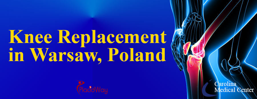 Knee Replacement in Warsaw, Poland