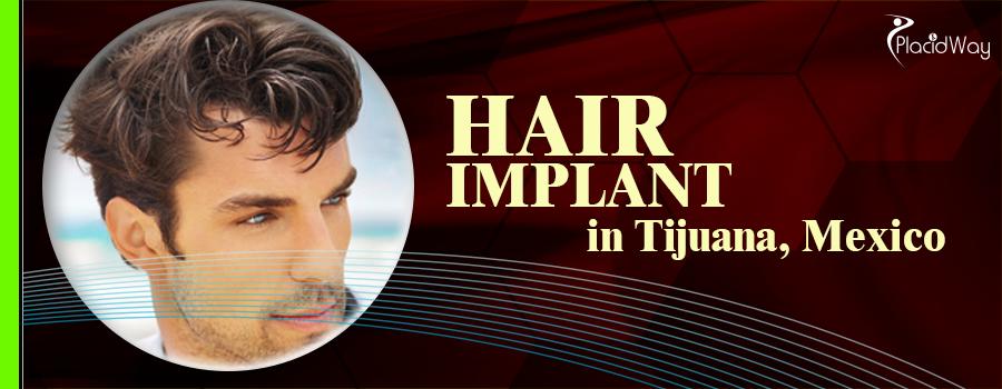 Hair Implant in Tijuana, Mexico