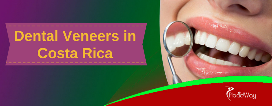 Top 10 questions about dental veneers in Costa Rica
