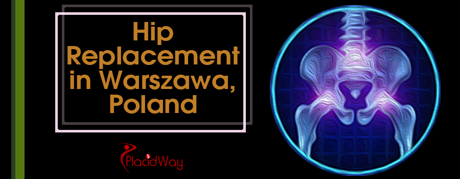 Hip Replacement in Warszawa, Poland