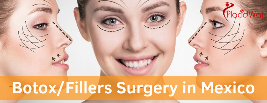 Botox/Fillers Surgery in Mexico