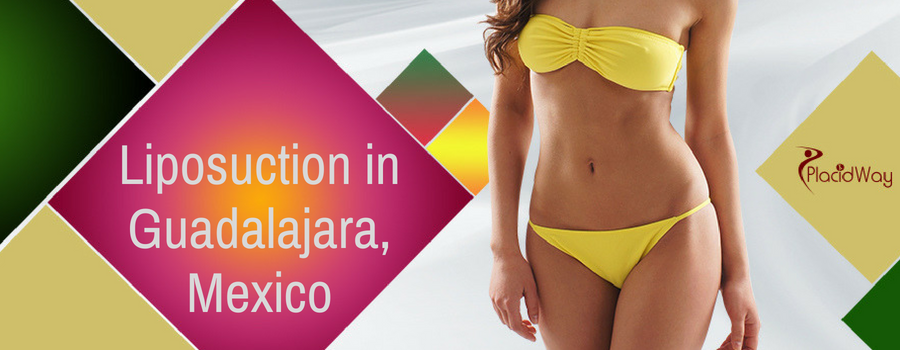 Liposuction in Guadalajara, Mexico